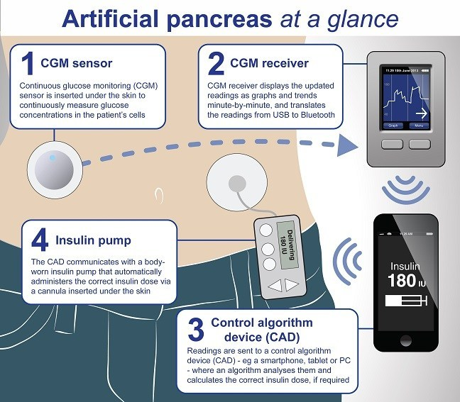 Artificial Pancreas: What You Should Know